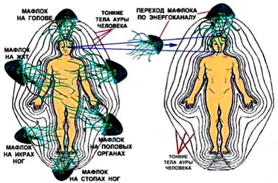 Как правильно лечить гельминтов picture 3